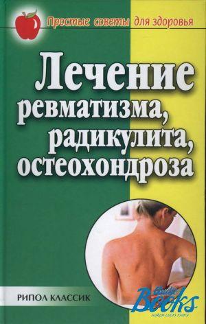 Лечение мышечного ревматизма